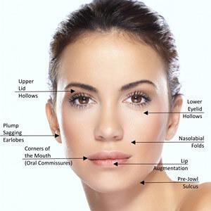 facial aesthetics Dermal Fillers Info
