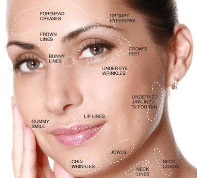 facial aesthetics botox inforgraphic